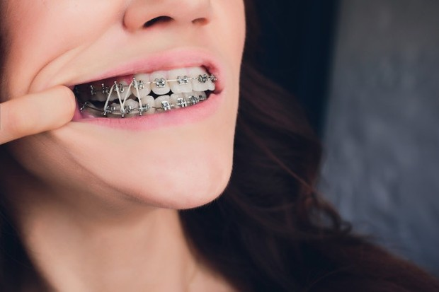 Ilustrasi: penyebab sariawan adalah pemasangan kawat gigi