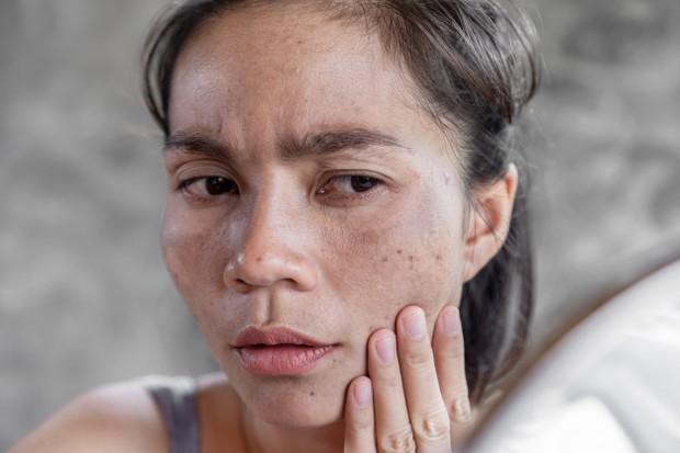 Memakai Krim Berbahan Steroid Menimbulkan Efek Samping Hipertrikosis