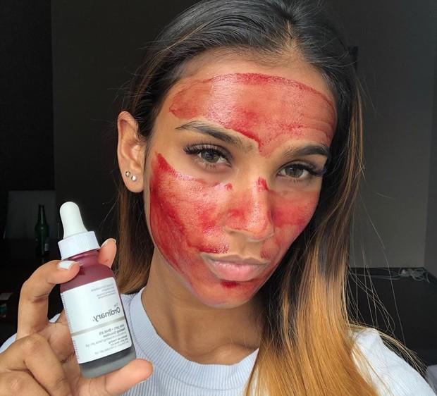 Aplikasikan The Ordinary Peeling Solution pada wajah yang sudah dibersihkan dan dalam keadaan kering demi menghindari lecet, lalu bilas setelah 10 menit hingga bersih.