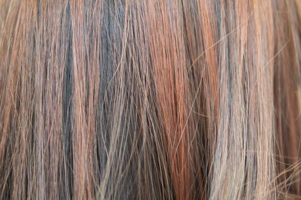 Biasanya yang mengalami adalah orang yang sering mewarnai rambut.