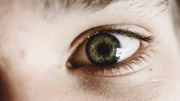 Mata Lelah Karena Kurang Nutrisi/ Foto: pixabay.com