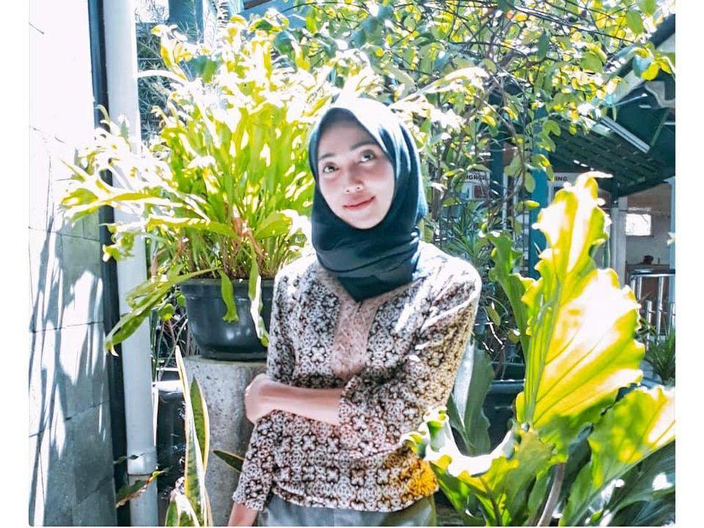 Cerita Wanita Yogya Viral karena Kebaikannya Beri Makan Orang Gangguan Jiwa