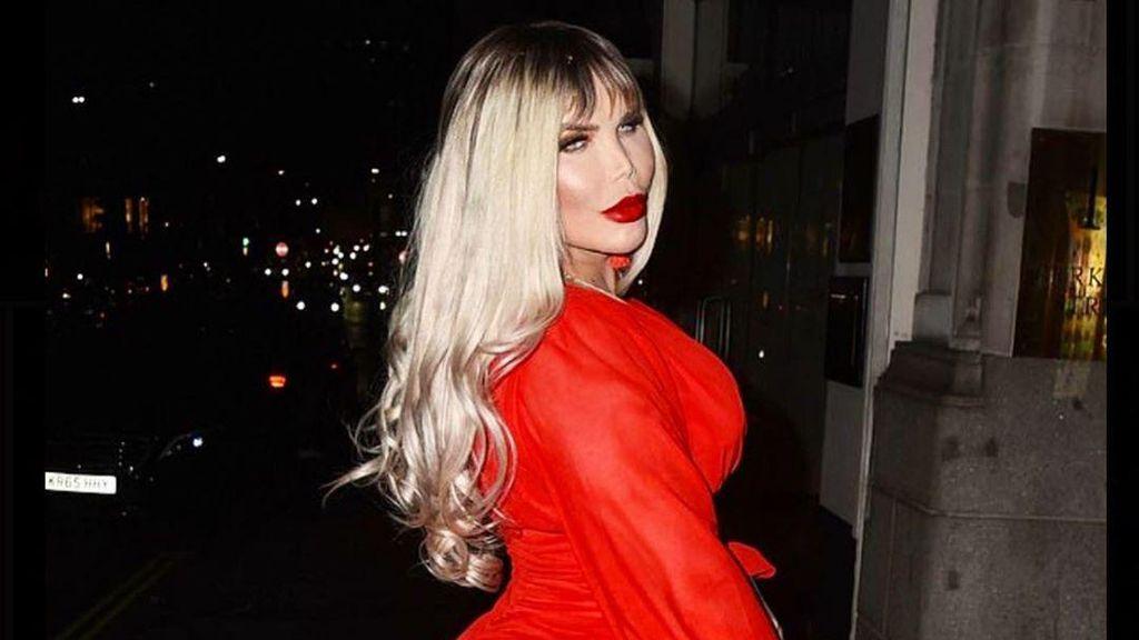 Foto Before After Pria yang Dulu Tergila-gila Oplas, Kini Jadi Transgender