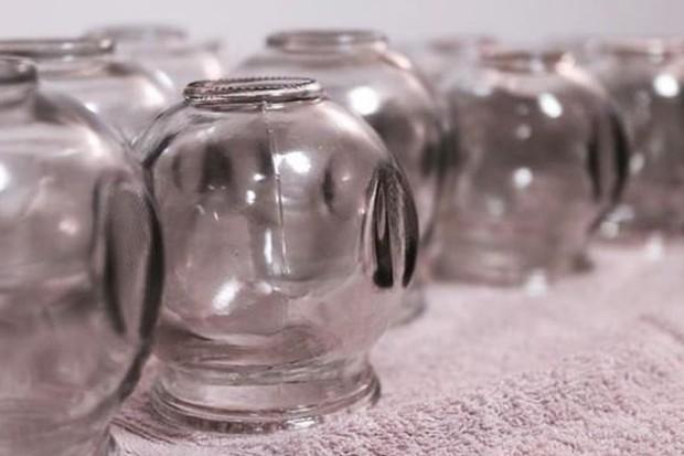 manfaat bekam, terapi yang menggunakan cup, dapat melepaskan racun dalam tubuh