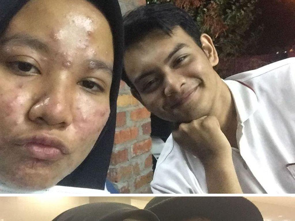 Uwu...Viral Cerita Pria Setia Dampingi Pacarnya dari Jerawatan Hingga Mulus