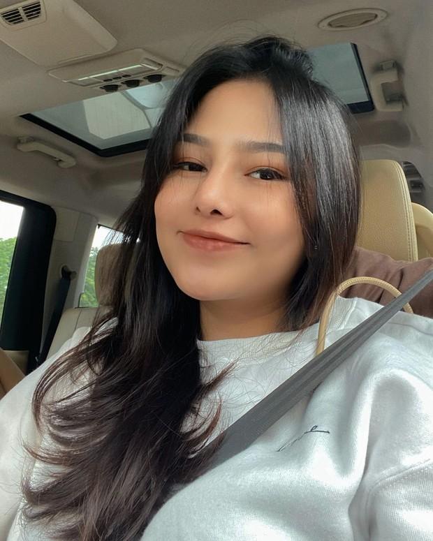 Dara Arafah mengungkap bahwa dirinya menjalani operasi plastik di bagian hidung