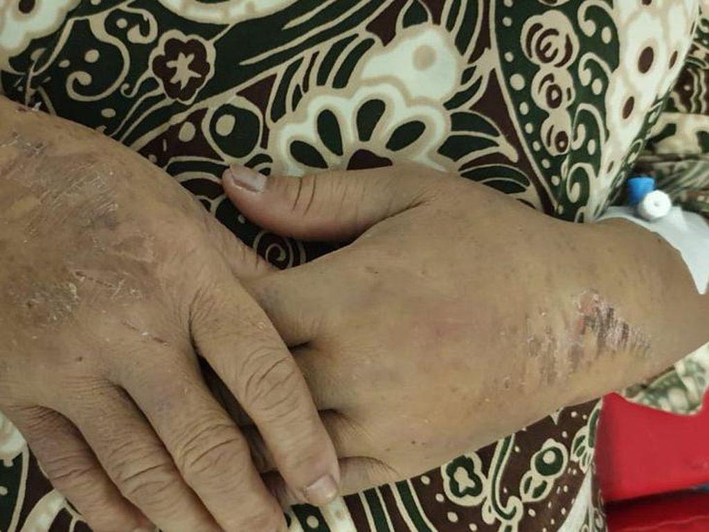 TKI Diduga Disiksa di Arab Saudi, Kini dalam Kondisi Kritis di RS Jeddah