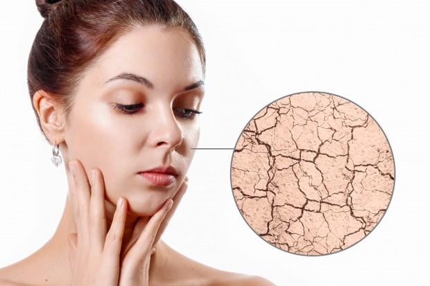 kulit kering memiliki ciri-ciri visual yang cenderung agak keriput dan kisut