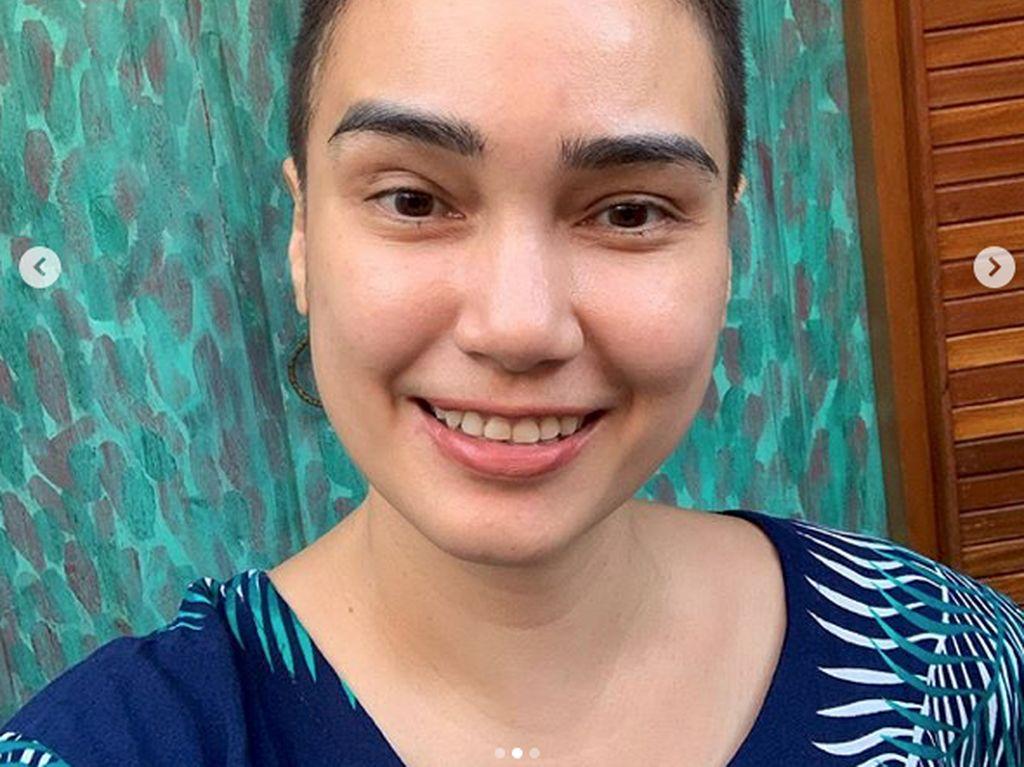 Feby Febiola Idap Kanker, Rambut Panjang Jadi Bondol Tapi Tetap Senyum