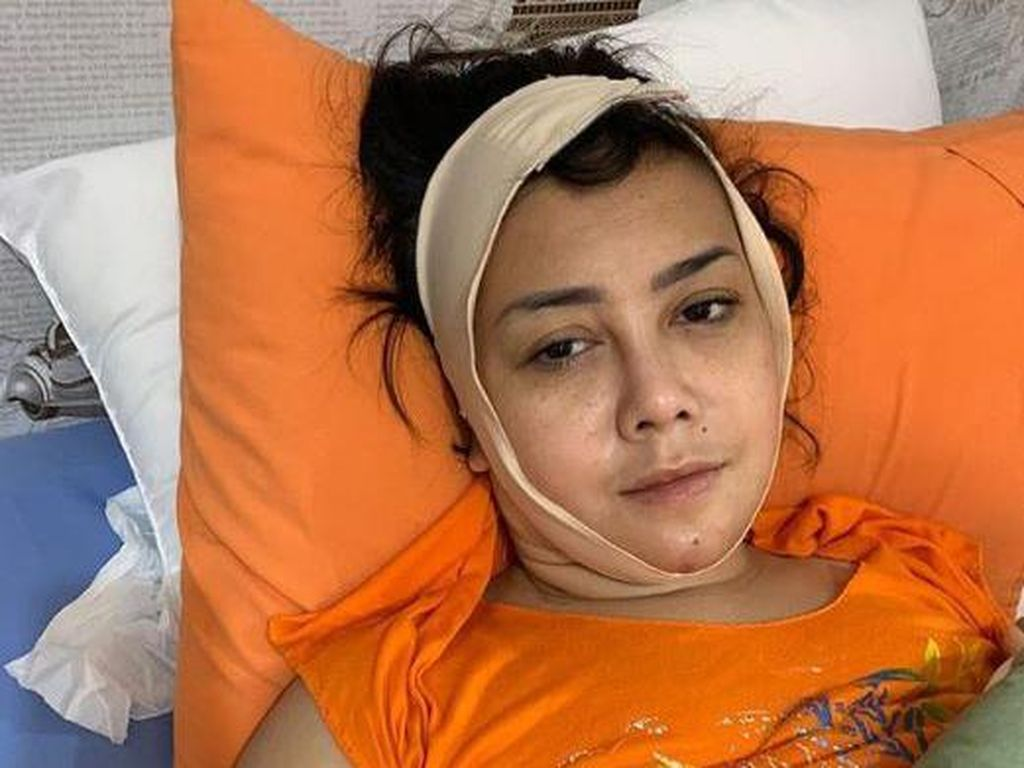 Diduga Kena Malpraktik, Kakak Elma Theana Somasi Klinik Kecantikan