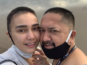 Mengharukan, Suami Feby Febiola Ikut Gunduli Rambut