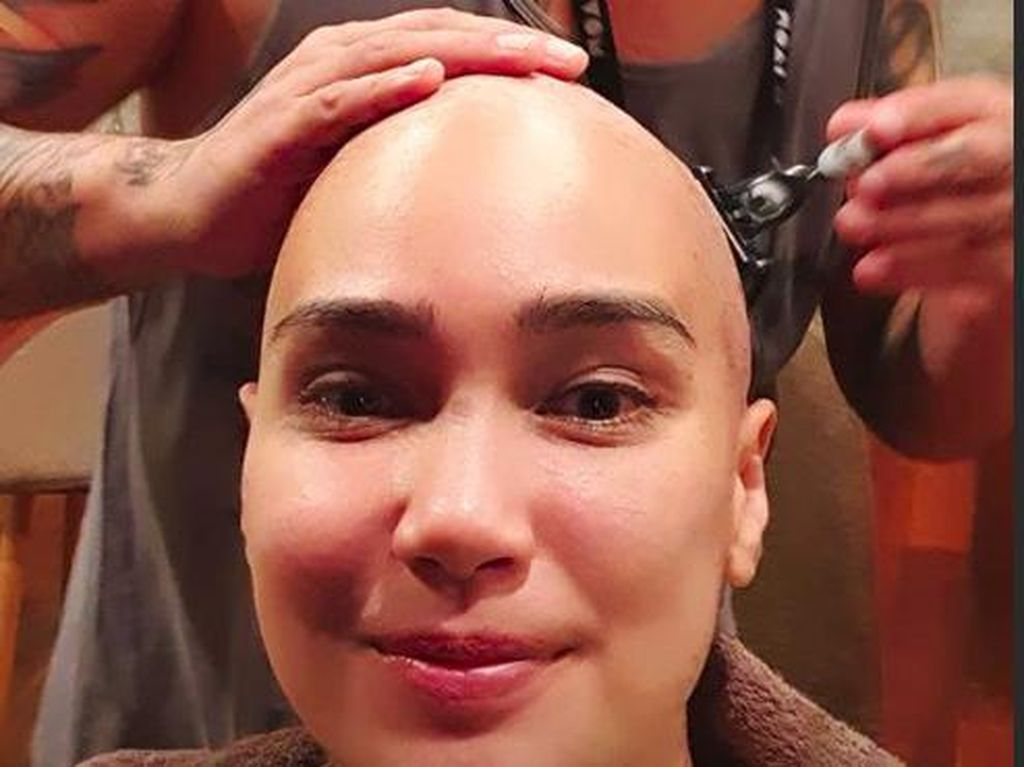 Feby Febiola Gunduli Rambutnya, Kenapa Kemoterapi Sebabkan Rambut Rontok?
