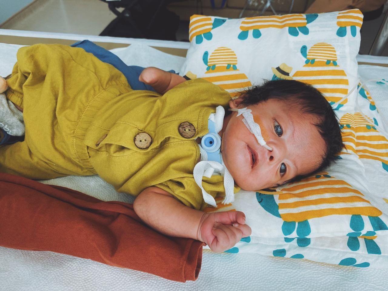 Hiro, bayi yang alami Moebius syndrome