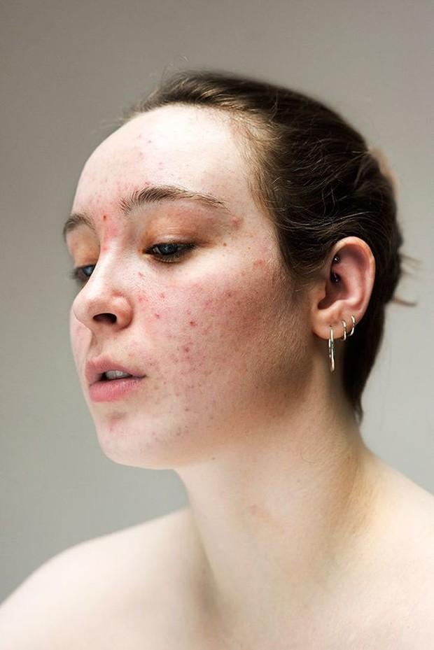 Munculnya biduran ini sering ditandai dengan rasa panas atau perih di wajah, reaksi kesemutan, hingga kulit yang terasa gatal dan bengkak.