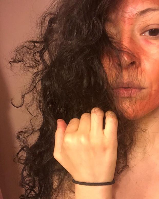Mary Miranda, perempuan asal Chicago, Amerika Serikat, mengaku kerap menggunakan darah haid atau menstruasinya untuk masker wajah.