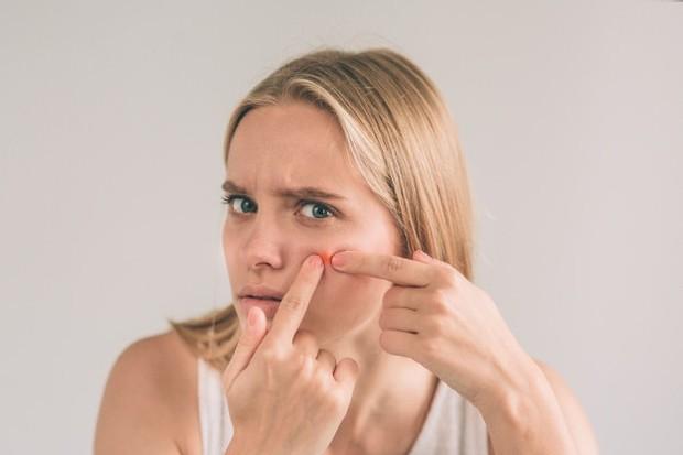 Jerawat terjadi akibat pori-pori tersumbat