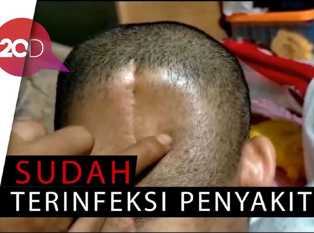 Kanker Otak, Sebagian Tempurung Kepala Istri Reza Dibuang