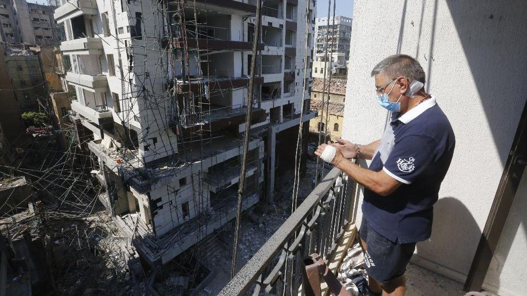Ledakan Lebanon Bikin 300 Ribu Warga Kehilangan Rumah