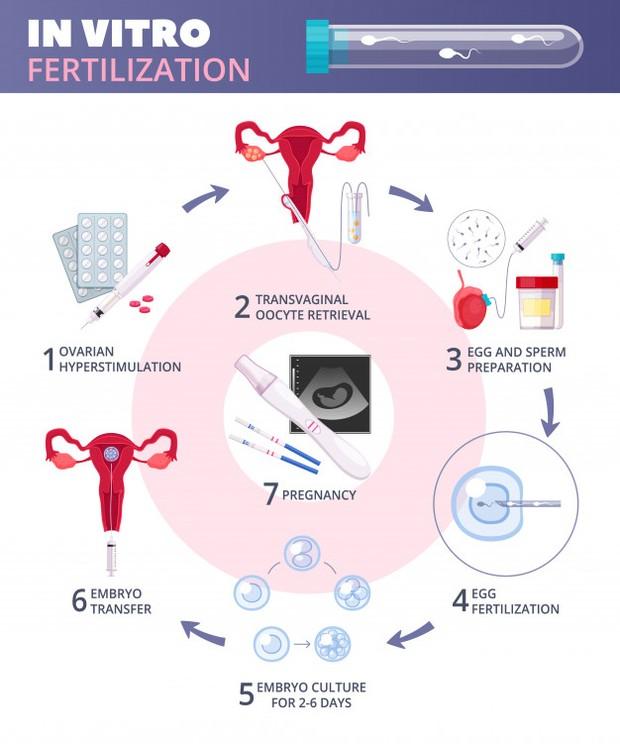 ilustrasi prosedur IVF atau bayi tabung