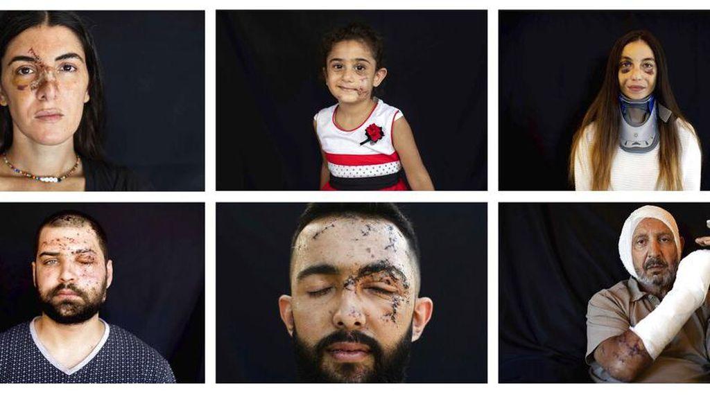 Potret Korban Luka Akibat Ledakan Lebanon