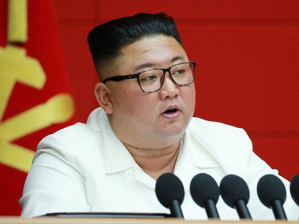 Kim Jong Un Diklaim Sedang Koma, Kondisi Apa Sih Itu?
