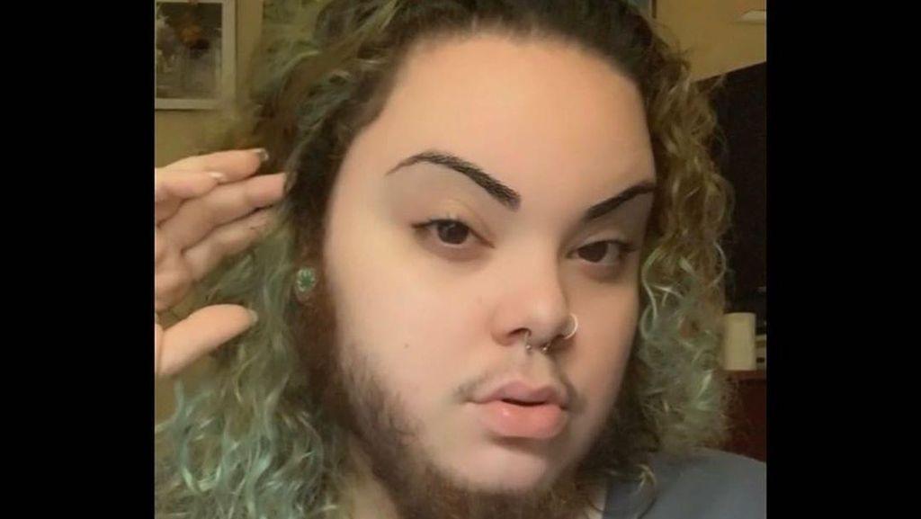 Penampilan Wanita Tulen yang Ditumbuhi Jenggot karena Gangguan Hormon
