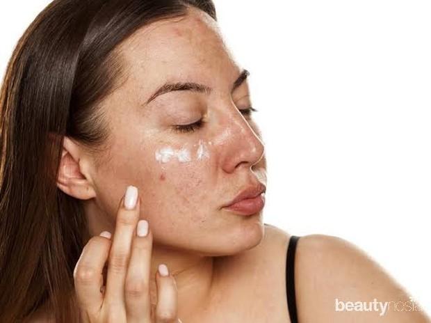 Retinol adalah salah satu pilihan terbaik untuk kulit kusam karena dapat mengelupas permukaan kulit, tapi tidak sekeras eksfoliasi fisik.