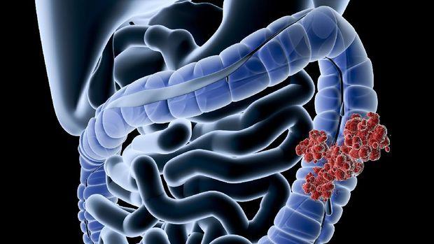 ilustrasi kanker kolon atau kanker usus besar