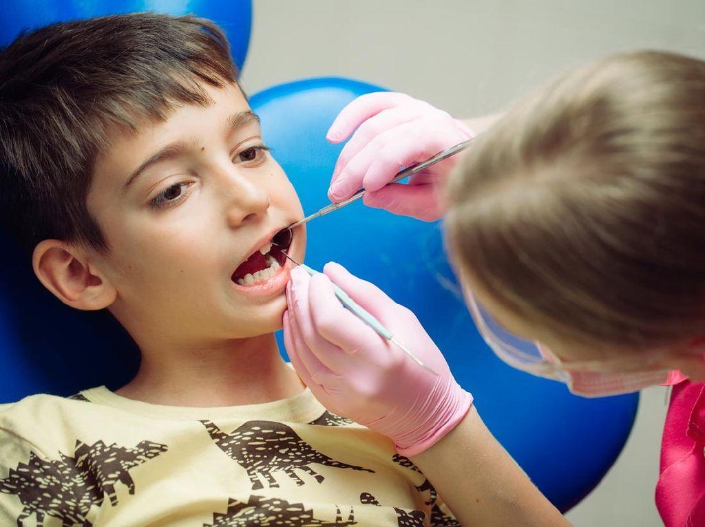 5 Tips Mencegah Gigi Berlubang Pada Anak dari Dosen FKG Unair
