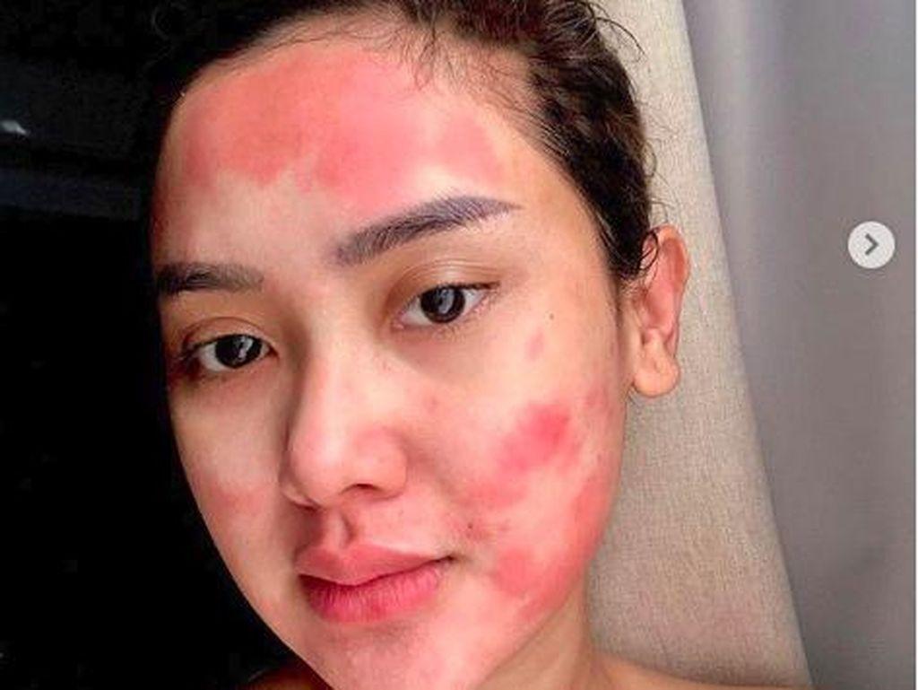 Wajah Cita Citata Dipenuhi Bercak Merah, Efek Pembengkakan Amandel 5 Tahun