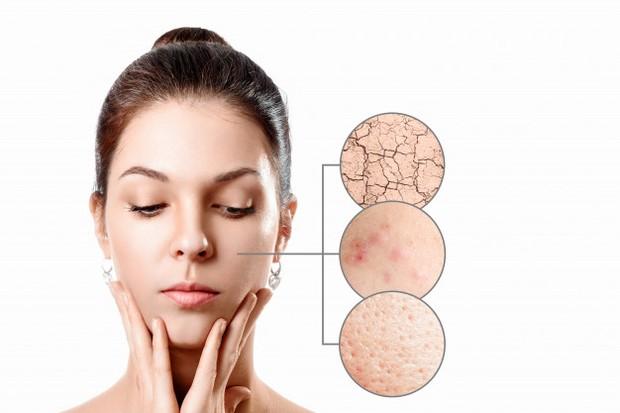 Beberapa penelitian menunjukkan, jika mengoleskan witch hazel ke kulit sensitif mungkin bermanfaat untuk mengobati kulit yang meradang, iritasi atau rusak.