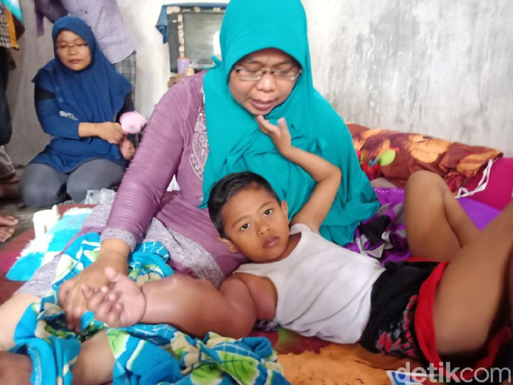 Tolong! Tangan Bocah 6 Tahun di Jombang Ini Bengkak Karena Tumor Ganas