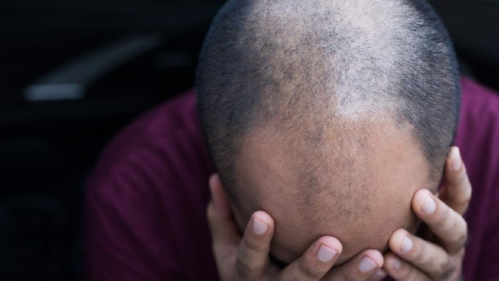 Close up man head of hair loss