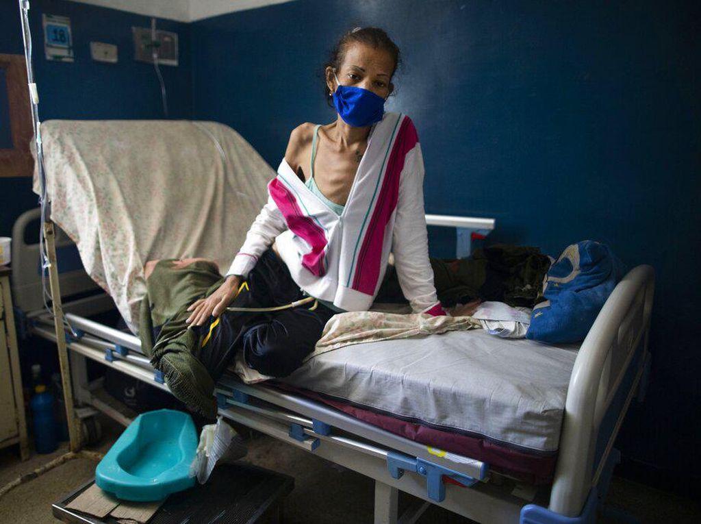 Potret Pasien Kanker di Venezuela Bertahan Hidup di Tengah Pandemi