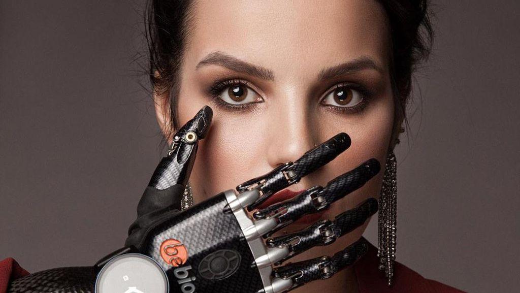 Potret Wanita yang Tangannya Dipotong Mantan Suami, Kini Pakai Tangan Palsu