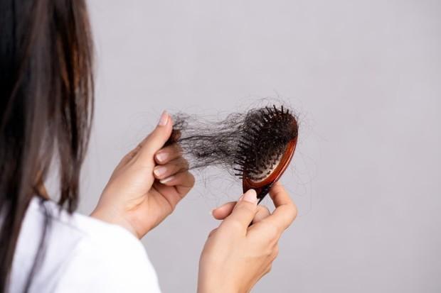 Memiliki rambut panjang dan kerap membuat akar rambut terbebani lebih besar hingga akhirnya mudah berjatuhan.