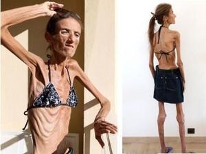Valeria Levitin Meninggal karena Anoreksia, Ini Penyakit dan Gejalanya