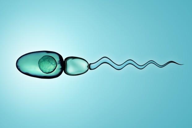 Analisis air mani mungkin akan sangat membantu dalam mendapatkan diagnosis yang tepat, karena sperma kamu dapat dihitung di bawah mikroskop dan diperiksa motilitas (gerakan) dan morfologi (bentuk) secara langsung.