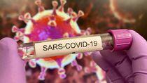 COVID-19 Diprediksi Bakal Jadi Endemik Seperti Flu