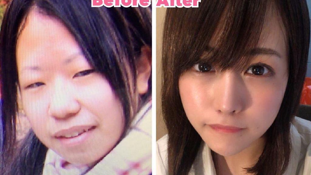 Potret Wanita Jepang yang Transformasi Oplasnya Bikin Netizen Kaget