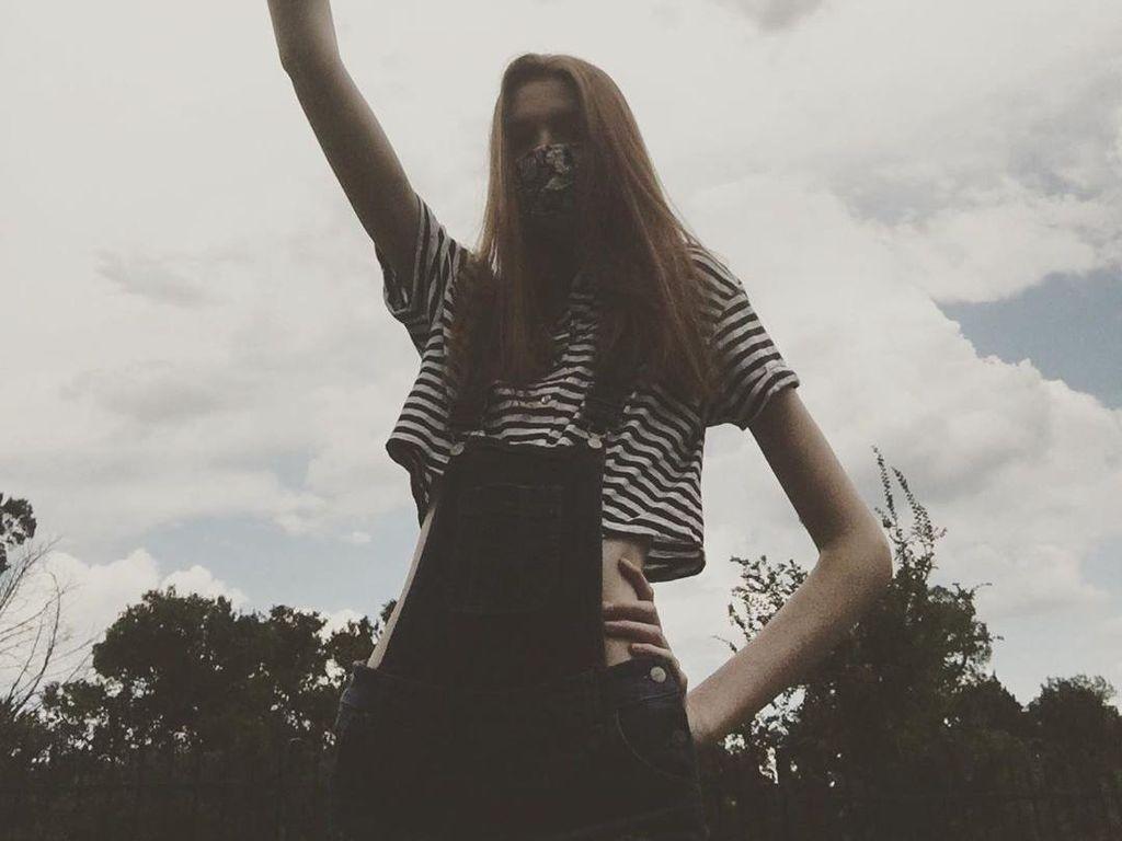 Ini Gadis Remaja Pemilik Kaki Terpanjang di Dunia, Tingginya 2 Meter