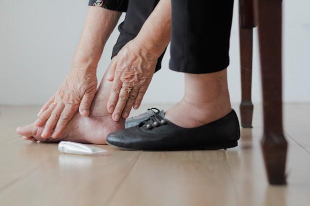 ilustrasi: bengkak di kaki bagian bawah bisa jadi tanda penyakit jantung