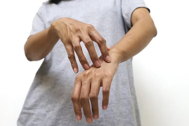 ilustrasi: ruam dan beruntusan oranye-kekuningan pada kulit bisa jadi tanda penyakit jantung