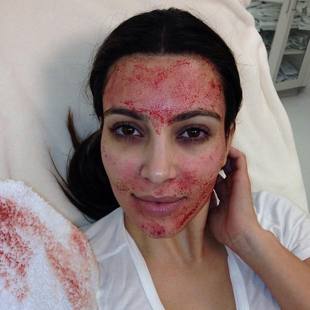 Meskipun terlihat cukup mengerikan, tapi treatment ini menawarkan hasil yang luar biasa untuk kecantikan wajah.
