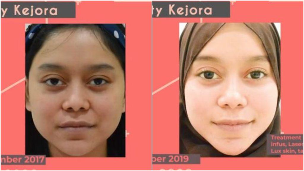 Foto Lesti sebelum dan sesudah perawatan
