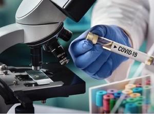 Ada Vaksin COVID-19, Siap-siap Harga Properti Bisa Booming Lagi
