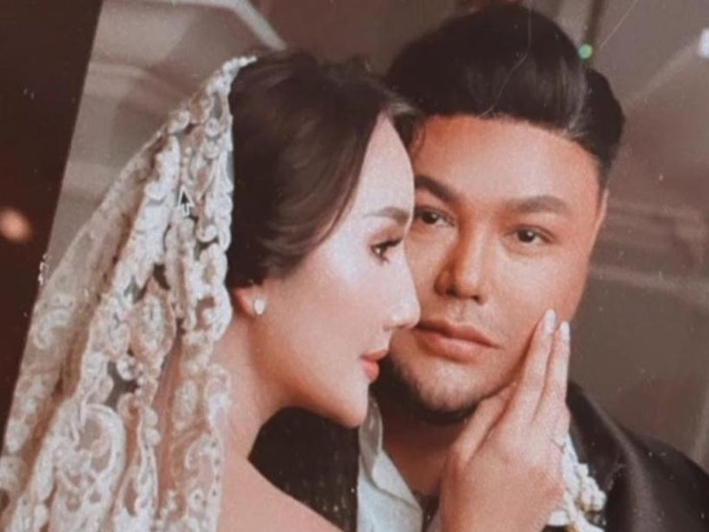 Sahabat Sampaikan Dukungan, Ayu Ting Ting Tak Tahu Rencana Ivan Gunawan Nikah