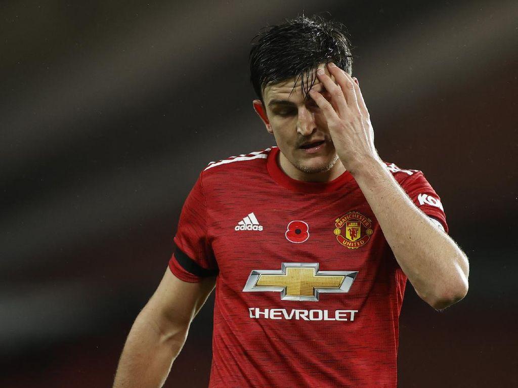 Saran Schmeichel untuk 2 Pemain Manchester United