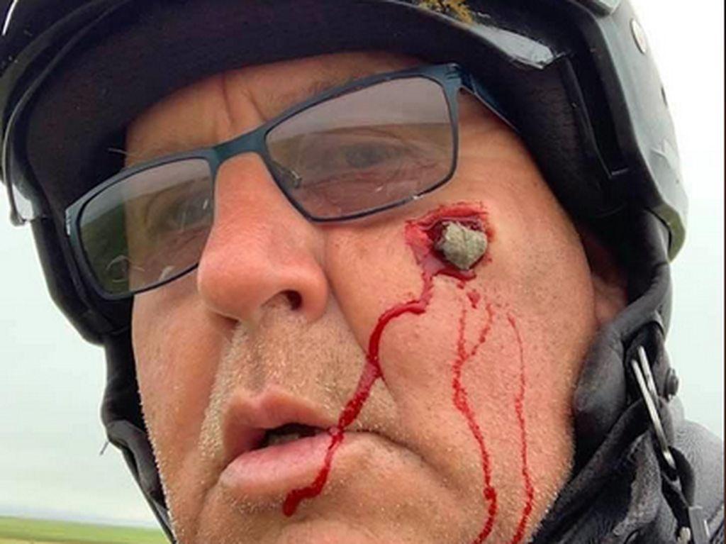 Ngilu! Batu Kerikil Tembus ke Pipi, Ini Alasan Pentingnya Pakai Helm Full Face