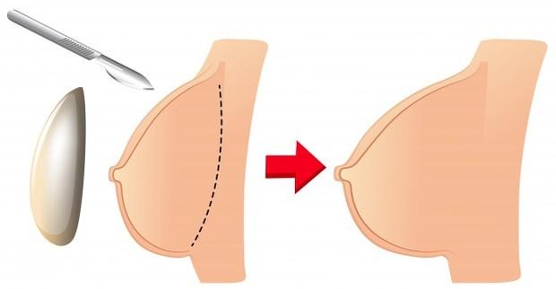 Jika kamu sedang mempertimbangkan untuk melakukan pembesaran payudara, mengetahui semua fakta sebelum operasi akan menjadi hal yang sangat penting.